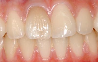 外傷歯.JPG