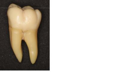 下顎第一大臼歯